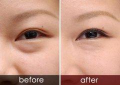 射频去眼袋术后恢复需要多长时间?