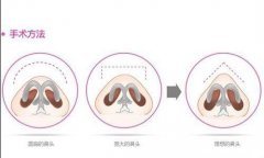 假体隆鼻后鼻子会变形吗
