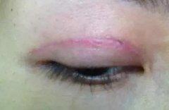 双眼皮手术后会留疤吗