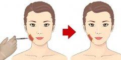 注射瘦脸针效果怎么样