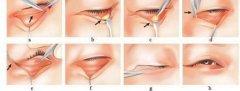 去眼袋手术中,哪一种效果更好?