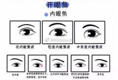 开眼角手术多久才能恢复