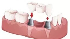 牙齿种植之后我们需要注意些什么呢