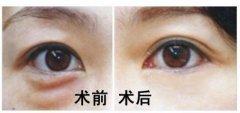 去眼袋手术要注意哪些事项呢