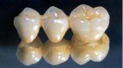 全瓷牙能够使用多久