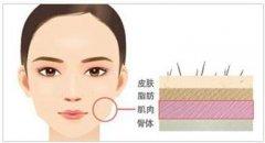 注射瘦脸的手术效果怎么样呢