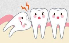 什么样的智齿需要拔除呢