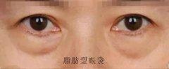 眼袋是怎么形成的原因有哪些