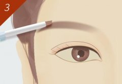 眉毛种植之后要多长时间才会长出来呢?