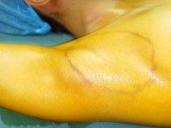 在副乳切除术的同时可不可以治疗腋臭呢