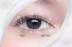 开眼角手术是怎么做的