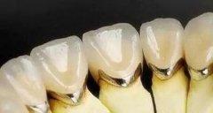 做了烤瓷牙的求美者们知道如何对烤瓷牙进行保养吗