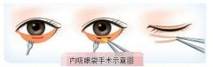 内吸去眼袋手术之后要注意很多的事情