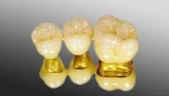 影响烤瓷牙使用寿命的原因有哪些呢