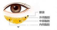 吸脂去眼袋的优势有哪些