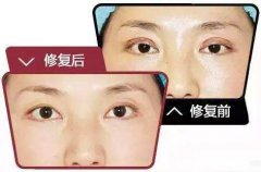 双眼皮修复手术之后该怎么疗养