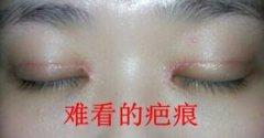 开眼角术后有没有什么办法能让眼睛快速消肿呢