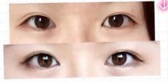 双眼皮手术要如何选择手术方式呢