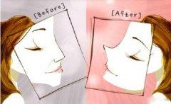 导致隆鼻失败的原因有哪些