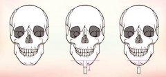 下颌角整形手术要如何选择手术切口呢