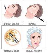 几种吸脂瘦脸的方法