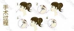 选择次数最多的注射隆鼻是靠什么特点优势