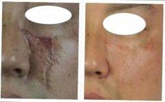 除疤手术后的常见问题