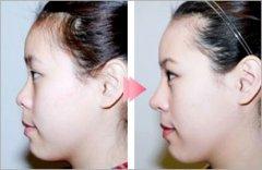 做完隆鼻手术之后,有什么需要注意的事项呢