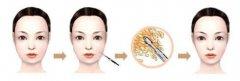 吸脂瘦脸术后吃些什么才能避免反弹