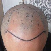 治疗脱发的最好方法是什么?