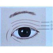 双眼皮术后多久可以做修复术