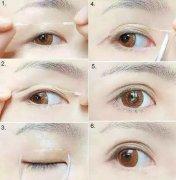 双眼皮有哪些类型呢