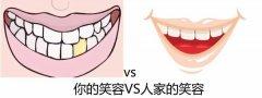 牙齿美白后有什么注意事项