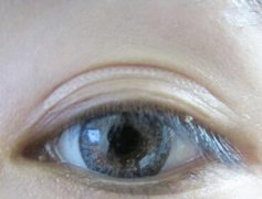 选择双眼皮手术要注意的细节有哪些
