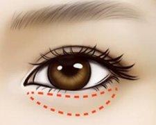 手术去眼袋有危害吗