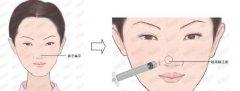 玻尿酸隆鼻注射一次能持续多久