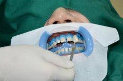 美白牙齿有哪些误区