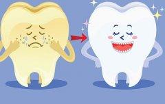 超声波洗牙有什么优点