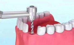 受损牙根拔掉后能做种植牙吗