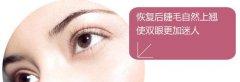 韩式双眼皮与埋线双眼皮那个好