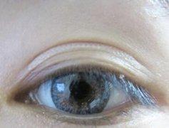 激光去眼袋后该怎么护理