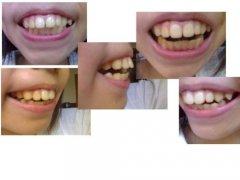 有关龅牙矫正的常见问题解答