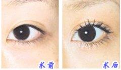 超声波去眼袋有哪些好处