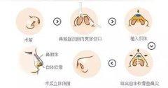 假体隆鼻材料有哪些
