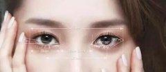 不适合做韩式双眼皮的人群有哪些