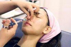 玻尿酸隆鼻有哪些副作用