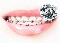 牙齿矫正的方式有哪些呢