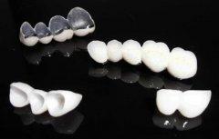 全瓷牙的保养方法都有哪些