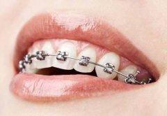 牙齿整形的标准是什么呢?