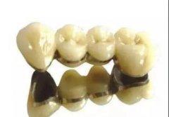 哪些牙齿情况适合用全瓷牙的修复方式呢